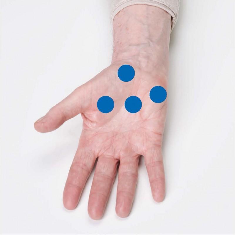 Ergotherapeut, Handinnenfläche, Finger