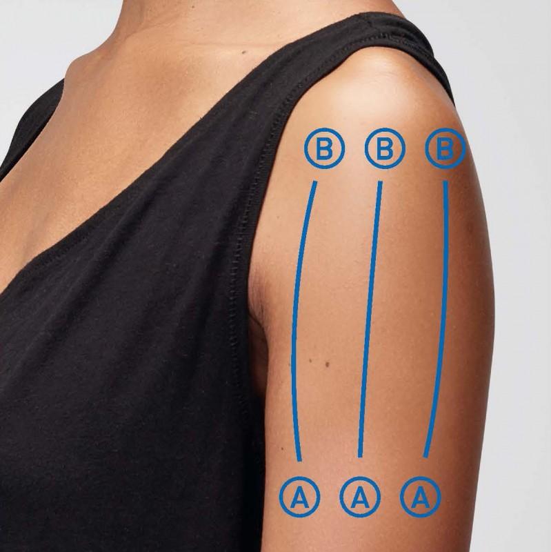 Arm, Schulter, Oberarm